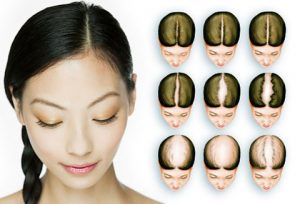 Hair transplant procedure for women